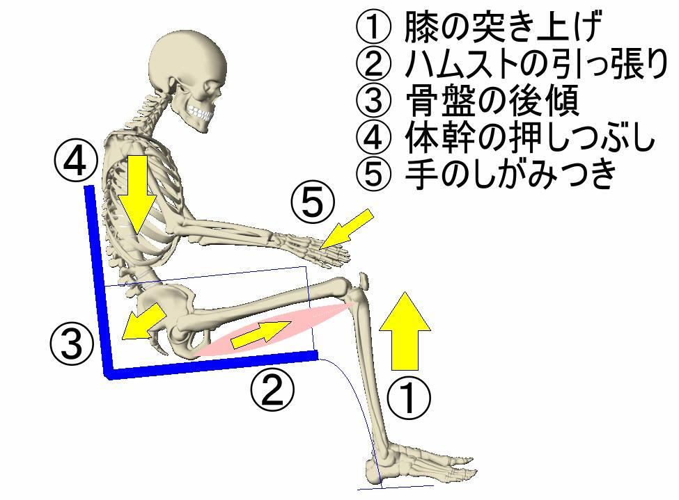 寝たきり老人さんの身体に起きていること ⑫ 関節拘縮の発生3:拘縮の進行